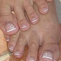 Болезни ногтей на ногах!