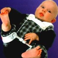 Дисплазия суставов у детей